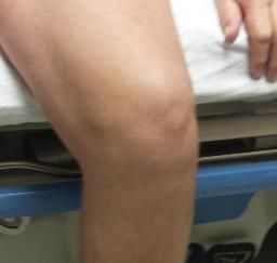Left Knee Total Replacement - 17MAR15