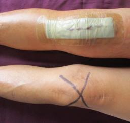 Right Knee Total Joint Replacement Surgery - 25AUG19